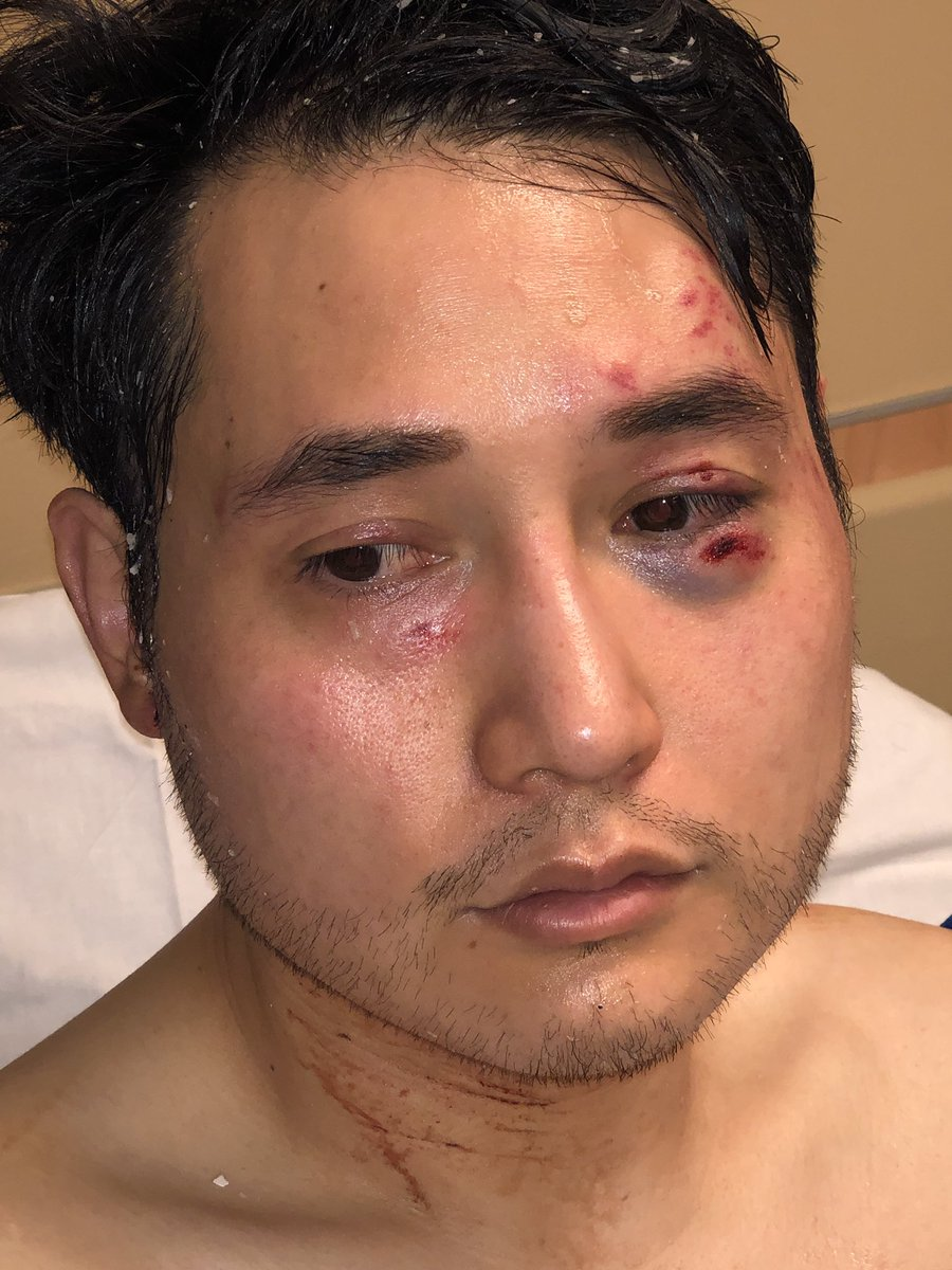 Independent Journalist, Andy Ngo, in the Emergency Room after getting beaten up documenting the violence at an Antifa Rally (picture taken from Andy Ngo's Twitter feed)